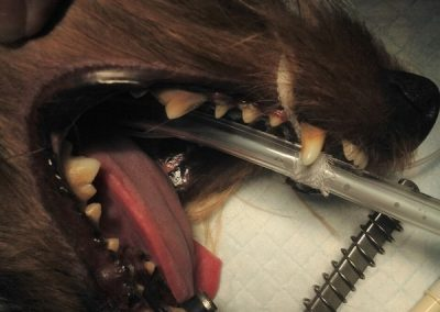 Grade 2 Dental Cleaning Before Photo